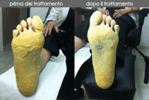 cheratodermia palmo-plantare
